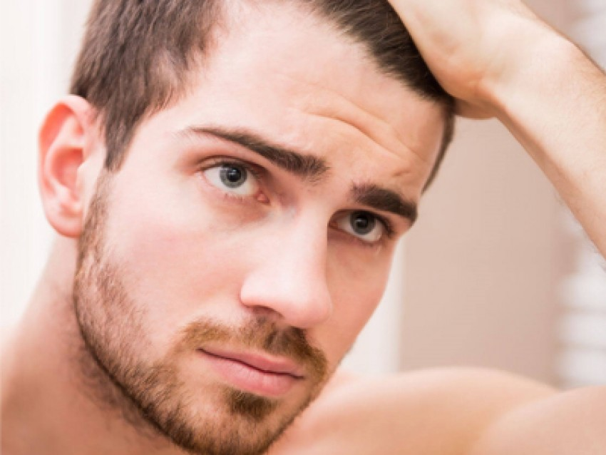 ریزش موی مردان و اصلی ترین دلایل آن