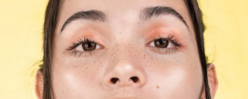 بهترین روش های از بین بردن کک و مک و لکه های پوستی