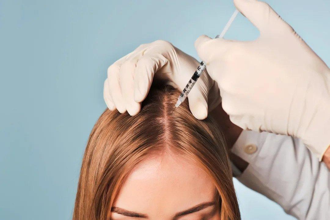 روش های مزوتراپی برای کاهش ریزش مو